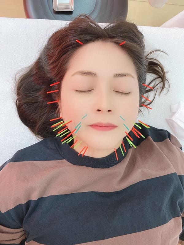 美容鍼を一度ご利用ください★沢山の方に喜ばれてます!!サムネイル